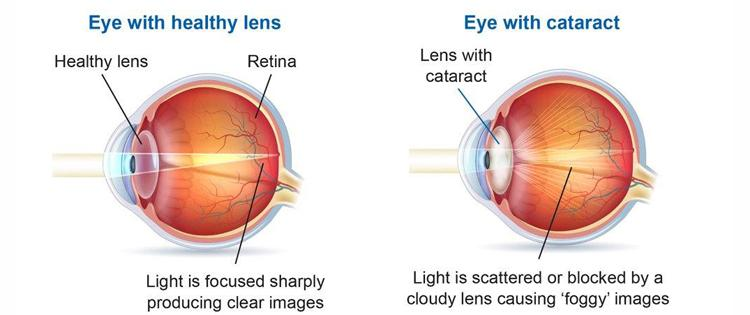 Cataracts And Macular Degeneration Macular Disease Foundation
