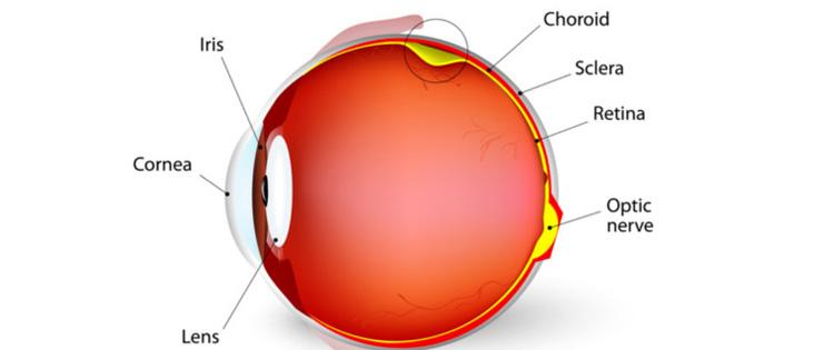 a734d26ad53 Retinal detachment occurs when the retina separates from the back of the  inside of the eye